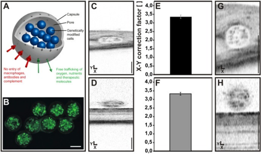 Use of intraocular MicroBeads to determine a correction factor to establish equal X-Y scaling.(A) Schematic drawing of a MicroBead. Encapsulated cells are genetically modified immortalized mesenchymal stem cells which in this case express GFP as a reporter. Scale bar: 100 μm (B). OCT raw images of (C) subretinally and (D) epiretinally placed beads. Scale bar: 200 μm. (E, F) Correction factors to establish X-Y equality for subretinal (E) and epiretinal (F) beads. Corrected OCT images of (G) subretinally and (H) epiretinally placed beads. Scale bar: 200 μm. There was no significant difference between E and F (p = 0,57).