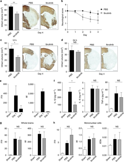 Neuronal protection and inhibition of IL-1β maturation by ibrutinib in ischaemic brain injury.Infarct volume on day 4 after stroke onset (a) and neurological scores (b) of mice treated with PBS or ibrutinib (3.125 mg kg−1 per day on Day 0, 1) immediately after stroke onset (n=9 for PBS and n=8 for ibrutinib). Infarct volume on day 4 after stroke onset of mice treated with PBS or ibrutinib 12 (c) or 24 h (d) after stroke onset (n=6). Scale bars, 1 mm (a,c,d). (e) mRNA levels of IL-1β or IL-6 in the ischaemic brain tissue on day 1 and 4 after stroke onset (n=3). (f) Enzyme-linked immunosorbent assay of IL-1β, IL-6 or TNF-α in the ischaemic brain lysate on day 1 after stroke onset (n=3). (g) mRNA levels of IL-1β or IL-6 in the ischaemic brain on day 1 after stroke onset (n=3). (h) mRNA levels of IL-1β, IL-6 or IL-23 in mononuclear cell fractions on day 1 after stroke onset (n=5). Data are representative of three independent experiments. Data are presented as mean±s.e.m. *P<0.05; **P<0.01. Two-sided Student's t-test.