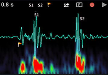 Two primary heart sounds: S1 and S2.