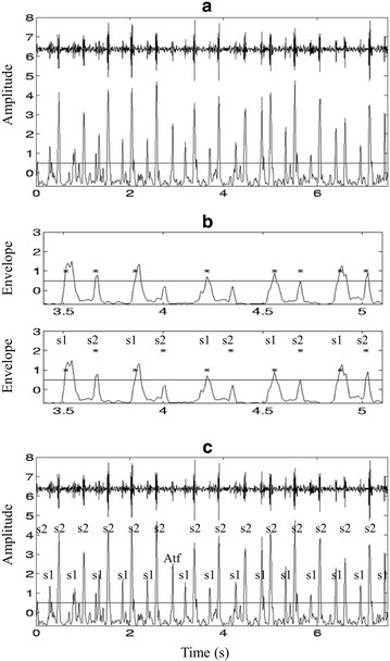 "Envelogram based heart sound segmentation a original signal and its average Shannon energy, b recovering the ""lost"" peaks, and c identified S1 and S2 and artifacts."