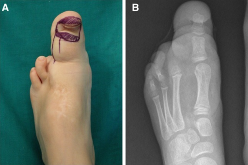 Case 2: Initial clinical photograph (a) and radiograph (b)