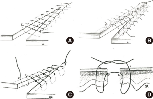 Four different commonly used suture techniques; continuous interlocking (A), Lembert (B), Connell (C), and Gambia (D).