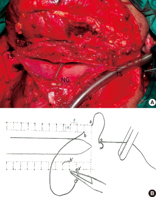 (A) Pharyngeal defect after total laryngectomy. (B) Schematic diagram of the modified continuous Connell suture (zipper suture). Note that the distance (shown by χ in panel B) is preserved between every following stitch, and none of following stitches are on the same line vertically and horizontally. TS, tension suture; NG, nasogastric tube.