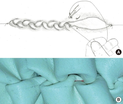 Semi closed pharyngeal defect. Note that oblige position of porteque and needle. Assistant keeps the vicryl in tension to provide inversion of mucosa and not to permit relaxation. (A) Zipper suture on synthetic material. (B) Note that the spontaneous inversion of the edges.