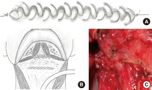 Closed pharyngeal defect: schematic diagram of pharyngeal repair with zipper suture (A, B), pharyngeal repair of the case focused at suture line (C).