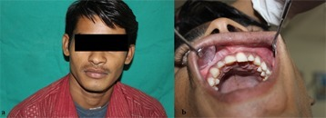 a: Clinical aspect - growth in alveolar process causing buccal cortical expansion with tooth #22 to #26  b: Intraoral picture of the patient showing vestibular obliteration in the second quadrant