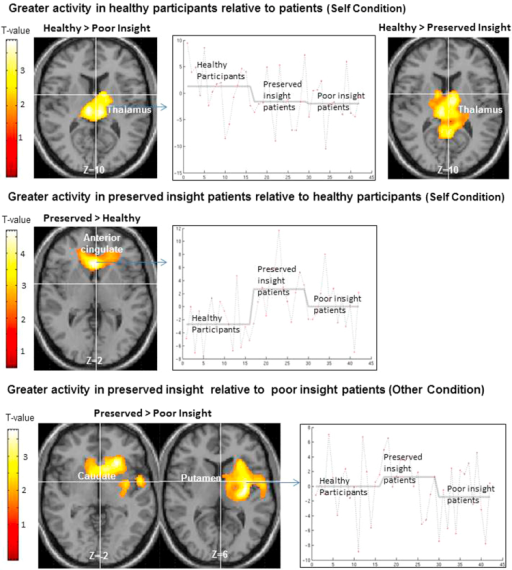 Axial sections of a standard MNI brain with areas of greater activity in the preserved insight group, compared to the healthy participant and poor insight groups superimposed (height threshold p<0.05, cluster-corrected p<0.05). The MNI Z co-ordinate is given below each image. Right of image=left hemisphere.