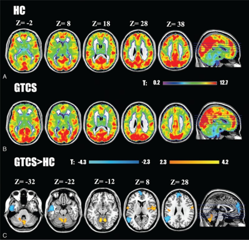 Spatial distribution of long-range FCD in patients with GTCS and HCs and the statistical differences between the 2 groups. The statistical significance of group differences was corrected by AlphaSim (P < 0.05, a combined threshold of P < 0.01 with a minimum cluster size of 224 voxels). The left hemisphere is on the left.
