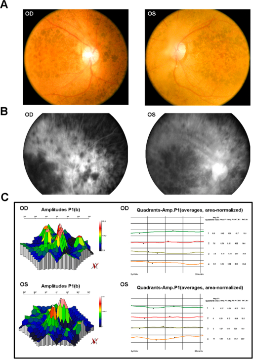 Representative clinical features of patient IV:2 in the Chinese family RP-2236.(A) Fundus photographs showed the loss of pigment epithelial with narrowed arterioles, pale optic disk and irregular pigment clumps with both peripheral retina and macula involved in both eyes. (B) FFA images showed extensive transmitted and blocked fluorescence due to loss of pigment epithelium with scattered pigment clumps. (C) mfERG records showed weak response under neither scotopic nor photopic condition, especially at the peripheral retina.