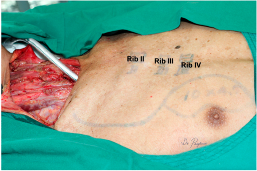 A partial circumferential defect of the hypopharynx resulted following ablative surgery for the recurrent hypopharyngeal squamous cell carcinoma after radical chemoradiation. The skin paddle was designed medially to the areola.