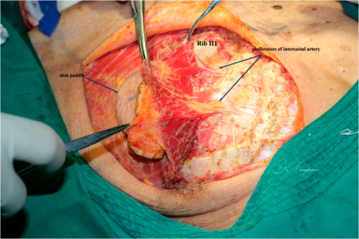 The third intercostal perforators from the internal thoracic artery was dissected and transected at its origins.