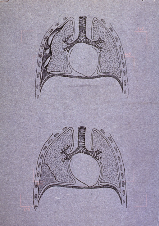 <p>Interior view of the lungs with abnormal growth; also showing portion of trachea.</p>