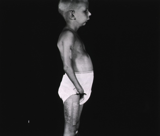 <p>A young boy with his right arm amputated above the wrist stands in profile.  The boy wears only undershorts. (The same boy appears in photographs no. 15 and no. 16 in box 1.)</p>