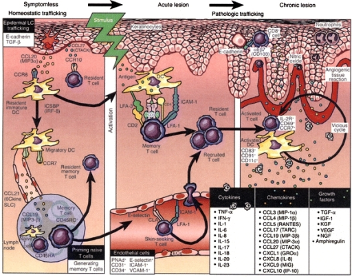 Inflammatory pathway in psoriasis [50]. Working model for immunopathogenesis of psoriasis. Multiple stages are proposed for trafficking patterns of immunocytes, involving signals in which symptomless skin is converted into a psoriatic plaque. Key inflammatory events include intraepidermal trafficking by CD8+ T cells and neutrophils. Reproduced with permission from J Clin Invest (2004, 113:1664–1675). Copyright 2004, The American Society for Clinical Investigation