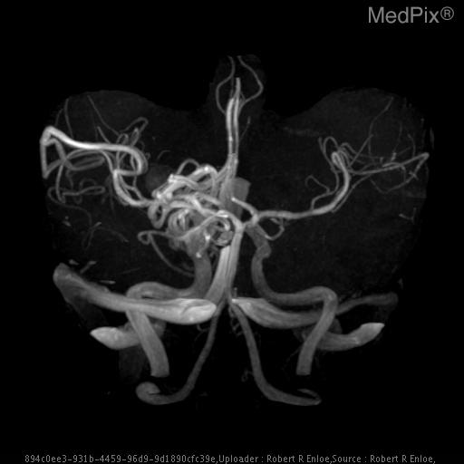 There is high-flow remodeling of the right anterior circulation and right PCA consistent with arterial venous shunting.  Posterior division of the MCA is enlarged, as is the PCA.