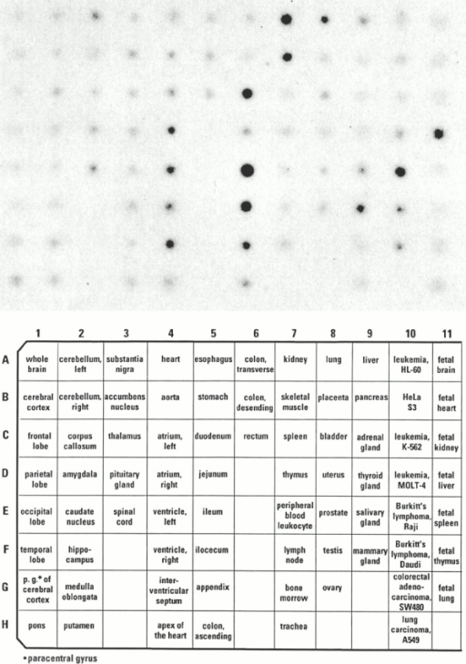 Autoradiogram of a human multiple tissue array RNA dot blot (CLONTECH Laboratories, Inc.) hydbridized with 32P-labeled human TDAG8 DNA.
