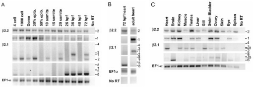 Expression of β2 subunit transcript variants in the embryo and adult. RT-PCR analysis using transcript variant-specific primers (located in the 5' exons 1 or 2 and exon 10) was performed on RNA samples from A) whole embryos at various developmental stages, B) cardiac tissue dissected from cmlc2:GFP embryos or from adult fish, and C) adult organs and tissues. Expression of a housekeeping gene, EF1α, was used as a control for RNA integrity. In B, 72 hpf or adult RNA reactions were run on single gels, subsequently subdivided to multiple panels for clarity in presentation. Transcript variant numbers are listed to the right of panels; refer to Fig. 1D.