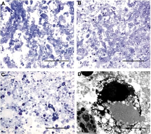 Semithin resin sections (1 μm) stained with toluidine blue to show morphology of control HBL-100 cells (A), after 24 h treatment with 3 mM H2O2 (B), or 50 μM SSP (C). The H2O2-treated cells appeared swollen, the cell membranes disrupted and the nuclei appeared pyknotic, whereas the SSP-treated cells were shrunken with condensed nuclear material. At the ultrastructural level, the nuclear material appeared to have fragmented to give electron dense bodies (D). Magnification bars A–C=0.1 mm, D=5  μM.