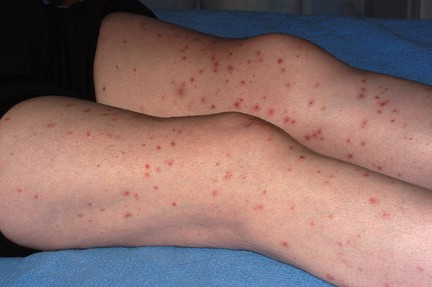 Genital Herpes Nerve Pain (Left Leg Pain) - Just Herpes