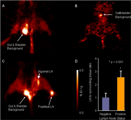 [18F]FEAU-PET imaging of mice with and without positive lymph node metastases.Representative coronal views of (A) a control animal with positive SLN injected with saline and (B) a mouse without tumor injected with NV1023, showing accumulation of radioactive signals in the gut, gallbladder and bladder. (C) A coronal view of a mouse with positive popliteal and inguinal lymph node metastases injected with NV1023. Positive PET signal was detected only in positive lymph nodes (white arrows). (D) The lymph node-to-surrounding tissue radioactivity ratios were measured in the PET scans; negative lymph nodes (blue column, n = 10), positive lymph nodes (orange column, n = 8).
