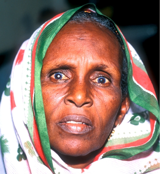 Worldwide, visual outcomes of cataract surgery are still a cause for concern. SOMALIA