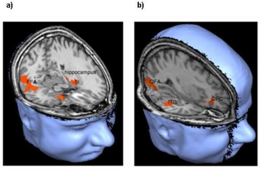 Effect of dysbindin-1 genotype on brain activity for an ...  Effect of dysbi...
