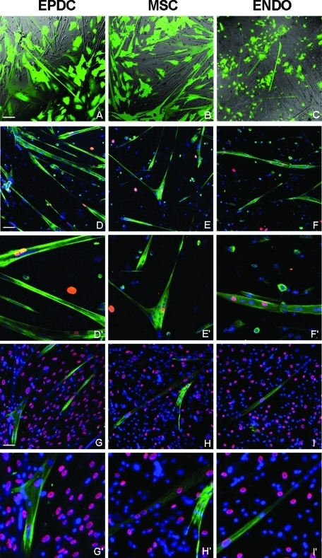 Human EPDCs, MSCs, and endothelial cells are incorporated into mouse skeletal myotubes and are reprogrammed to express human skeletal muscle specific genes. Adult EPDCs were cocultured with differentiating mouse primary myoblasts. Equal numbers of MSCs and endothelial cells were used for comparison. (A–C) Combined bright-field and green fluorescent protein (GFP) fluorescent (green) images of living cells. Human cells were labeled with a lentiviral vector expressing GFP. Several GFP-labeled multinucleated myotubes, indicating that human cells are participating in myotube formation, are visible with all three cell types. The number of green myotubes is much lower in the case of endothelial cells compared to EPDCs and MSCs. (D–F) Immunofluorescence of fixed cells labeled with antibodies that recognize both mouse and human Troponin T (hTNT, green) but only human LaminA/C (red). Several hybrid myotubes containing both human (red) and mouse (Hoechst blue) nuclei are visible. G–I: Fixed cells were stained with antibodies specific for hTnT (green) and human LaminA/C (red). Hoechst (blue) was used to visualize all nuclei. Independently from the cell origin, human nuclei inside hybrid myotubes are phenotypically reprogrammed to express skeletal muscle specific proteins. ENDO: endometrium-derived endothelial cells. Magnification: 20×, Bars: 50 μm. D′–F′, G′– I′: 2× enlarged boxes of D–F and G–I, respectively.