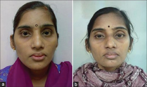 (a) The photo immediately after she was rendered total bilateral adrenalectomy (TBA) status; neuromas over conjunctiva, lips and face are seen. (b) Diffuse hyperpigmentation 12 months after TBA status. (With permission from patient)