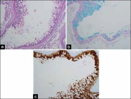 Histopathology of the cyst. (a) H and E stain shows a cystic lesion, with a fibrous wall, lined by pseudostratified columnar epithelium. Note that some cells harbor large intracytoplasmic mucinous contents. (b) Alcian blue staining highlights the mucin content of some cells in blue. (c) Immunohistochemical stain for pan-cytokeratin demonstrates the epithelial origin of the cyst