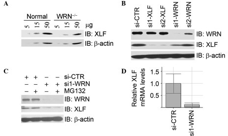 WRN regulates mRNA levels of XLF. (A) XLF protein levels decreased in WRN-deficient fibroblasts. Whole cell lysates were prepared from human fibroblasts GM00637G (normal) and AG11395A (WRN deficient) and subjected to immunoblotting analysis for XLF and β-actin. (B) Inhibition of WRN expression by siRNA resulted in a decrease of XLF protein levels. U2OS cells were transfected with si-CTR, XLF siRNA (si1-XLF or si2-XLF) or WRN siRNA (si1-WRN or si2-WRN). Total cell lysates were harvested 48 h following transfection and subjected to immunoblotting analysis with the antibodies indicated. (C) MG132 treatment did not restore the decrease of XLF protein levels caused by the depletion of WRN. U2OS cells were treated as described in (B) except that MG132 was added to cells 4 h prior to harvest. (D) Inhibition of WRN expression led to a decrease of XLF mRNA. U2OS cells were treated as described in (B). Total RNA was extracted and subjected to real-time RT-PCR assays for XLF mRNA. XLF, XRCC4-like factor; si-CTR, control siRNA; RT-PCR, reverse transcription PCR.