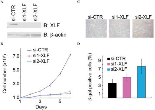 XLF suppresses cellular senescence. (A) Inhibition of XLF expression in WI38 cells. WI38 cells at passage 39 PD were transfected with si-CTR or si-XLF. Total cell lysates were extracted 48 h following transfection and subjected to immunoblotting analysis with the antibodies indicated. (B) Depletion of XLF inhibited cell proliferation. XLF expression was inhibited by transfection with si-XLF as described in (A) and cell numbers were determined every 24 h. Six duplicate samples were analyzed at each time point. (C and D) Inhibition of XLF expression accelerated cellular senescence. XLF-depleted WI38 cells were assayed for β-gal. Representative images of stained cells are shown in (C) and quantitative data in (D). PD, population doubling; XLF, XRCC4-like factor; β-gal, β-galactosidase; si-CTR, control siRNA.