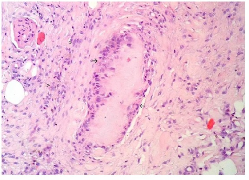 Histopathological findings of the subcutaneous nodule: foreign body cell reaction to eosinophilic fibrillar material consistent with gouty tophi (arrow). In the peripheral area, there is an inflammatory infiltrate of lymphocytes, plasma cells, and macrophages (arrowhead) (hematoxylin and eosin 100x).