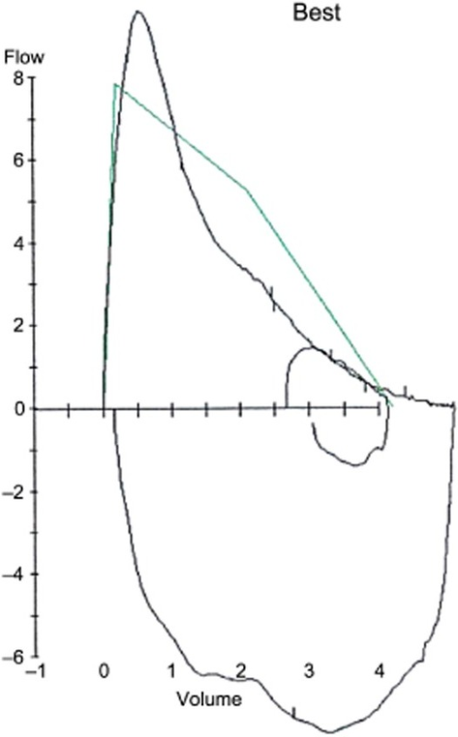 Flow volume loop revealing expiratory flow limitation on forced expiratory maneuver and a tidal breath. Normative curve is shown in green.