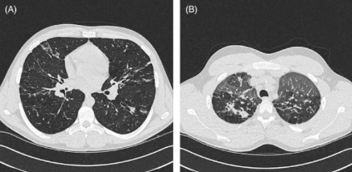 (A) Representative images from a computed tomography (CT) thorax of the cystic fibrosis patient, revealing significant bronchiectatic changes. (B) Expiratory images from CT thorax, revealing a mosaic pattern consistent with air trapping.