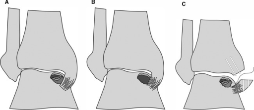 Surgical procedure of autologous chondrocyte transplantation with a periosteal flap: osteochondral defect with a (A) delaminated piece of cartilage, (B) debrided defect, and (C) malleotomy and suturing of the periosteal flap.