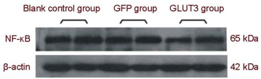 Nuclear factor kappaB (NF-κB) expression in PC12 cells after ischemic injury (western blot assay).Blank control group: non-transfected PC12 cells; green fluorescent protein (GFP) group: GFP-transfected PC12 cells; glucose transporter 3 (GLUT3) group: GLUT3-transfected PC12 cells.