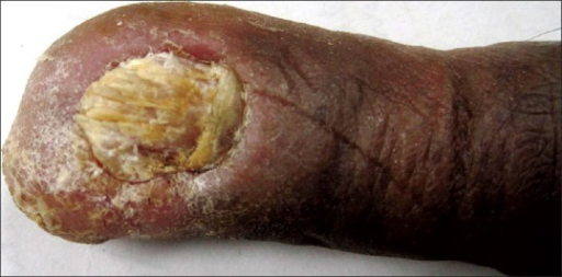 Warty keratotic plaque with secondary nail dystrophy