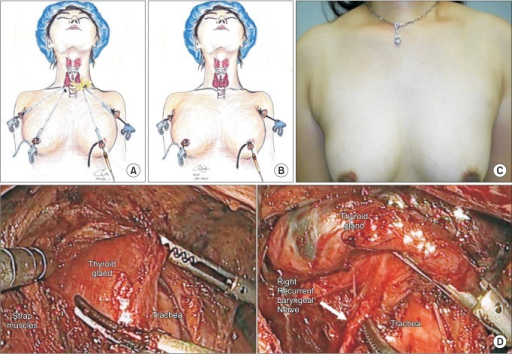 Endoscopic thyroidectomy using the BABA (bilateral axillo-breast approach) method; (A) intraoperative scope insertion, (B) actual surgical approach, (C) outcome at 2nd week postoperatively, and (D) intraoperative picture (anatomy).