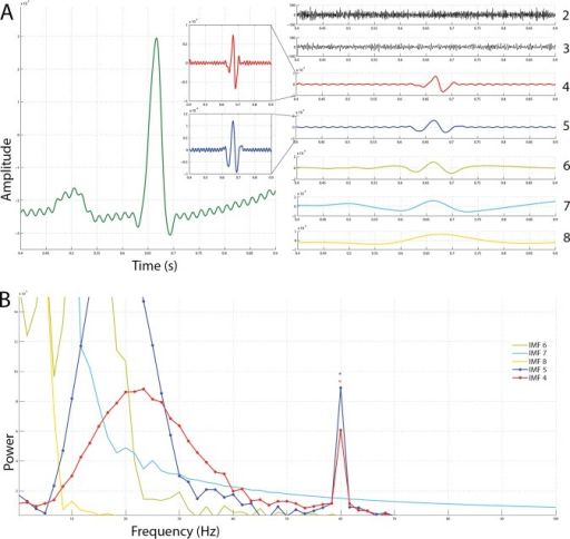Ensemble empirical mode decomposition on an ECG signal with 60 Hz powerline noise added to it and the frequency spectra of the resulting intrinsic mode functions.(A) On the left is the original snippet of an ECG signal corrupted with powerline noise (green). Seven IMFs obtained via EEMD have been shown on the right. A constriction of the windows of IMF 4 and IMF 5 reveals that a chronic sinusoidal modulation exists within them. (B) The frequency spectra of the IMFs shown in A have been plotted. From this, it is plausible that the modulations seen in IMFs 4 and 5 are powerline noise at 60 Hz.