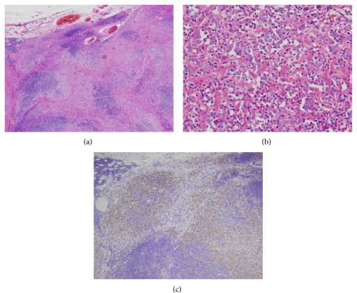 Axillary lymph node specimen. (a) H-E stain. Low power field. Tumor cells invaded lymph node parenchyma. (b) H-E stain. High power field. Monotonous tumor cells and fibrotic area. (c) Immunohistochemical stain of estrogen receptor. Tumor cells were diffusely positive.
