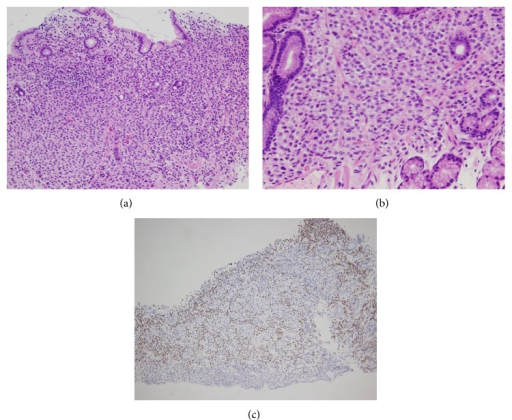 Gastric biopsy specimen. (a) H-E stain. Low power field. Tumor cells infiltrated the lamina propria. (b) H-E stain. High power field. Monotonous round tumor cells resembling the tumor cells seen in bone marrow and axillary lymph nodes. (c) Immunohistochemical stain of estrogen receptor. Tumor cells were diffusely positive.