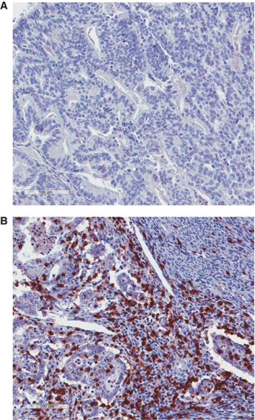 Examples of immunohistochemical staining for CD8 in high-risk EC (A) tumour with low number of CTLs. (B) Tumour with high numbers of CTLs.