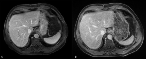 T1 MRI post-contrast portal venous phase (A) 1 month after discharge showing significant improvement of multiple hypointense lesions, and (B) 2 months after discharge showing complete resolution of the hepatic lesions.