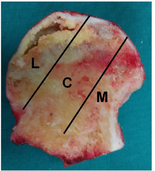 Image of coronal section of the femoral head showing three pillars of the femoral head: lateral (30%), central (40%), and medial (30%) [19].