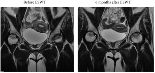 MR images of the bilateral hips in a 31-year-old female patient with glucocorticoid-induced osteonecrosis of the femoral head showed regression of the lesion 6 months after ESWT, and the hips were pain-free for daily activities.