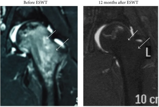 MRIs of the left hip before and after treatment showing resolution of bone marrow edema and no further collapse of the femoral heads (Arrow).