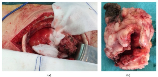 Intraoperative view (a) and resection specimen (b).