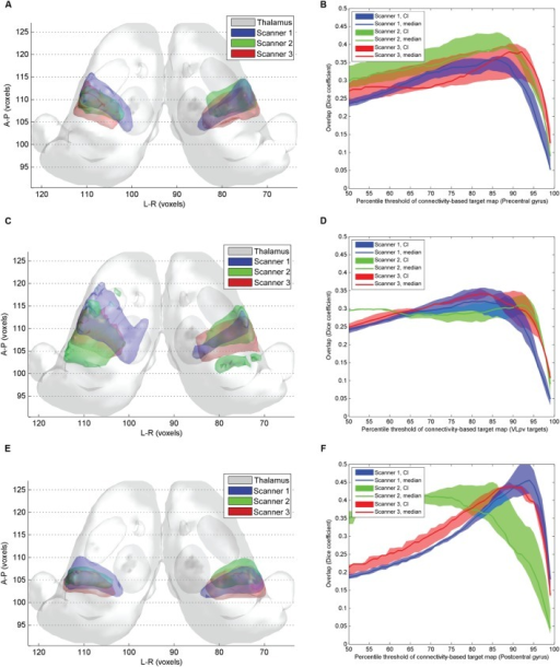 Inter-scanner reproducibility of connectivity based intrathalamic targets.(A) 3D visualization of the inter-scanner variability of precentral CBT over the study population; (C) 3D visualization of the inter-scanner variability of VLpv CBT over the study population; (E) 3D visualization of the inter-scanner variability of VPLp CBT over the study population; (B) dependency of the inter-scanner variability of the precentral CBT volume on the applied connectivity threshold; (D) dependency of the inter-scanner variability of the VLpv CBT volume on the applied connectivity threshold; (F) dependency of the inter-scanner variability of the VPLp CBT volume on the applied connectivity threshold.