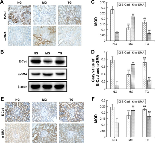 Berberine suppresses renal tubular epithelial-to-mesenchymal transition in DN model KKAy mice by upregulating the expression of E-Cad and downregulating the expression of α-SMA.Notes: (A) Representative photographs of immunohistochemistry for E-Cad and α-SMA in DN model KKAy mice, 400×. (B) Representative band of E-Cad and α-SMA proteins by Western blot in DN model KKAy mice. (C) Comparison of MOD of E-Cad and α-SMA proteins in DN model KKAy mice. (D) Comparison of the gray value of E-Cad and α-SMA proteins in DN model KKAy mice (n=3). (E) Representative photographs of in situ hybridization for E-Cad and α-SMA in DN model KKAy mice, 400×. (F) Comparison of MOD of E-Cad and α-SMA mRNA in DN model KKAy mice. **P<0.01, NG and ##P<0.01.Abbreviations: DN, diabetic nephropathy; E-Cad, E-cadherin; MG, model group; MOD, mean optical density; NG, normal control group; TG, treatment group.