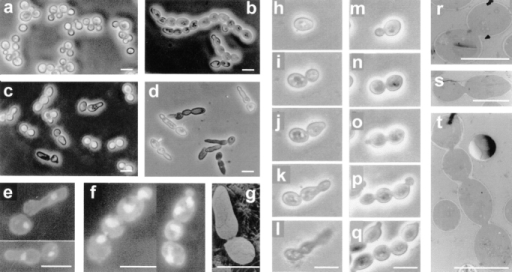 Microscopic observations by phase–contrast (a–d and h–q), fluorescence (e and f), scanning electron (g), and transmission  electron (r–t) microscopy of haploid and diploid cdc15 mutant strains. (a) Strain L2C24d (cdc15-lyt1) transformed with the pBS9 plasmid bearing the CDC15 gene after 6 h of incubation at 37°C, thus displaying wild-type behavior. (b) Diploid MY1 strain (cdc15-1/cdc15-lyt1) under the same conditions showing abundant chained cells. (c) L2C24d (cdc15-lyt1) strain under the same restrictive conditions.  (d) The same strain incubated in an osmotically stabilized medium (supplemented with 1 M sorbitol) under identical conditions, showing an exacerbated expression of its characteristic apical growth phenotype. (e) Nucleus staining in fixed RNase-treated cells from strain  L2C24d (cdc15-lyt1) after 6 h of incubation at 37°C. (f) Cells from the diploid strain MY1 (cdc15-1/cdc15-lyt1) after the same treatment.  (g) A characteristic asymmetric doublet from the L2C24d (cdc15-lyt1) strain incubated at the restrictive temperature for 6 h. (h–l) Series  showing the development of a cell from the L2C24d (cdc15-lyt1) strain at 37°C. Pictures were taken at 0 h (h), 1 h (i), 2.5 h (j), 3.5 h (k),  and 4.5 h (l). (m–q) Series showing the development of a cell from the MY1 (cdc15-1/cdc15-lyt1) strain in the same conditions. Pictures  were taken at 0 (m), 0.5 h (n), 1.5 (o), 2.5 (p), and 3.5 h (q). (r and s) Section of cells from the L2C24d (cdc15-lyt1) strain after 6 h of incubation at 37°C, showing that septation has not been initiated. (t) A chain of cytokinetic-defective cells from the diploid MY1 (cdc15-1/ cdc15-lyt1) strain under the same conditions. Bars, 8 μm.
